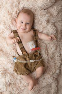 Paul Luto Fruchtwassermangel im alter von 6 Monaten