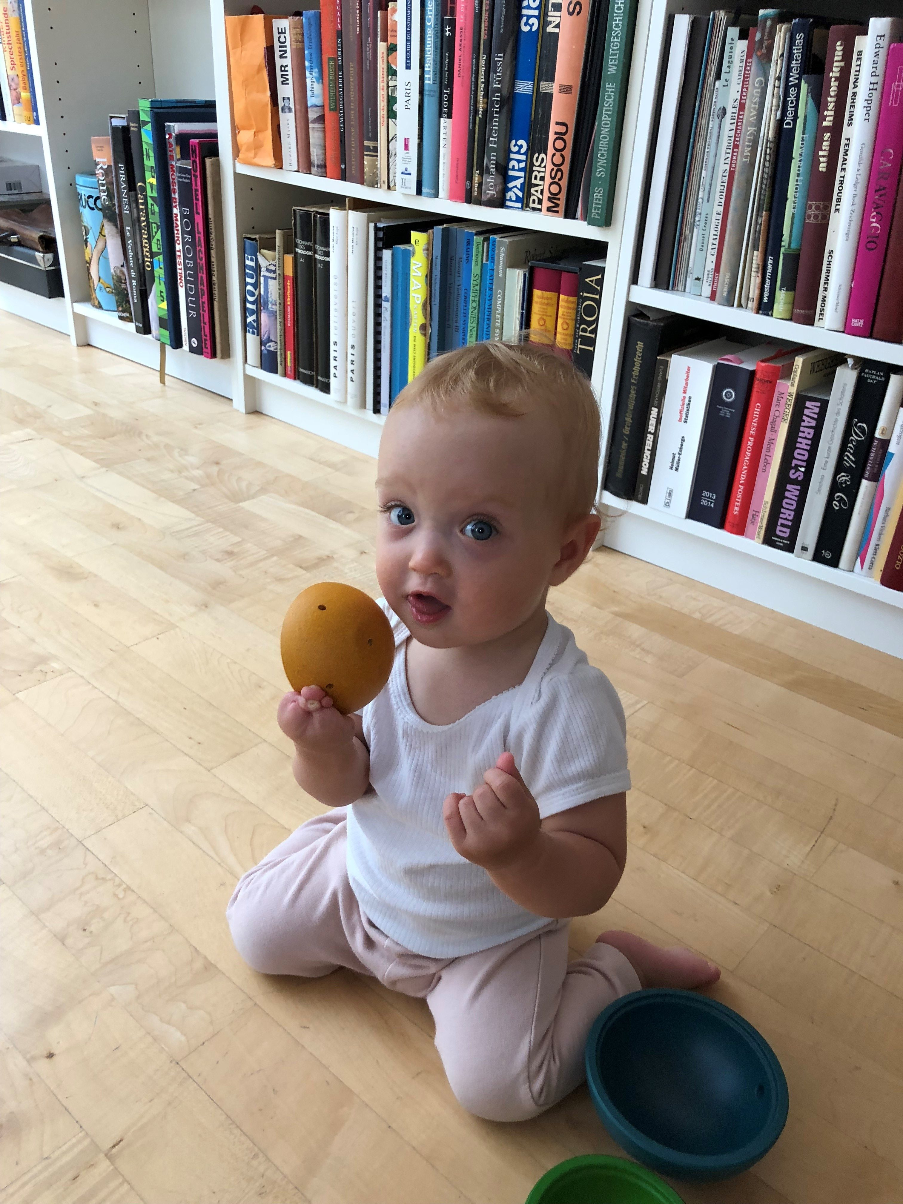 Mathilde – Amnionbandsyndrom